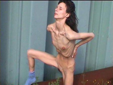 Голая анорексичка фото